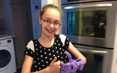 prosthetic kids hand challenge