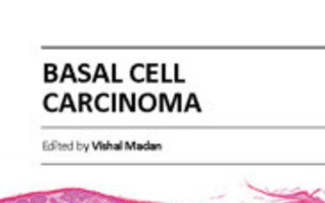 Basal Cell Carcinoma - Overview