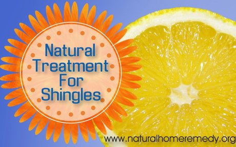 Natural Treatment For Shingles- Get Relief Today | Best All Natural Home Remedies