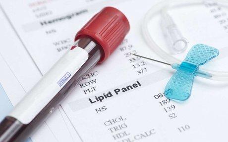 Quelle est la différence entre le bon et le mauvais cholestérol ?