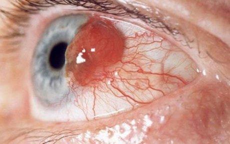 Cara Mengobati Tumor Mata Secara Alami Tanpa Operasi - Obat Tumor