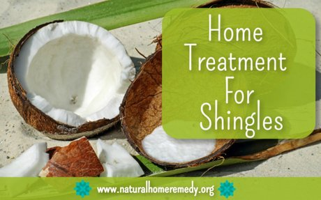 Home Treatment For Shingles That Work | Best All Natural Home Remedies