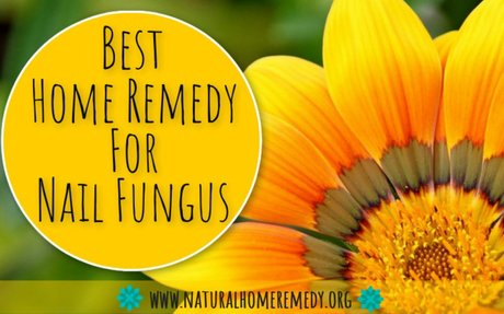 Best Home Remedy For Nail Fungus : Quick And Easy Tips | Best All Natural Home Remedies