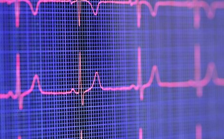 What Is Heart Rate Variability–and Do You Need to Know Yours?