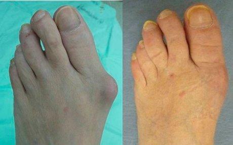 Juanetes en los pies - Cirugía - Consulta gratuita con un cirujano - Juan Macías nos resp