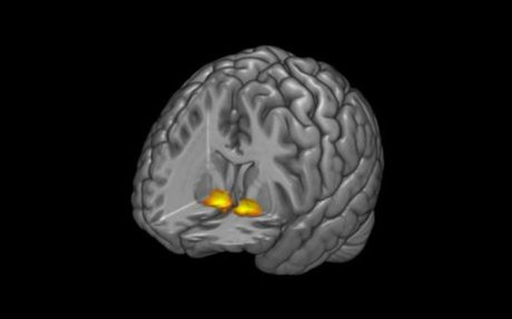Neuroimaging study finds alterations in connectivity of brain areas can predict depression