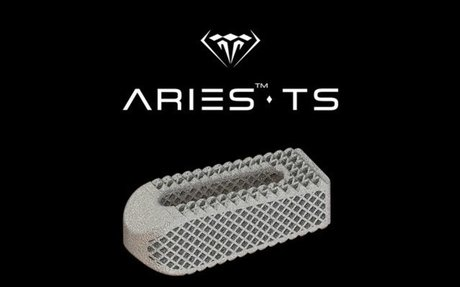 Osseus Fusion Systems Has Officially Announced the Alpha Launch Of Aries™-TS
