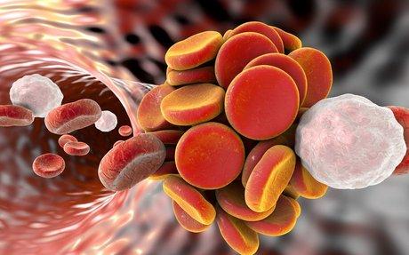 Correlazione Cancro-TEV: potenzialmente fatale e spesso sconosciuta