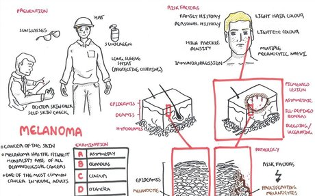 Melanoma - Overview
