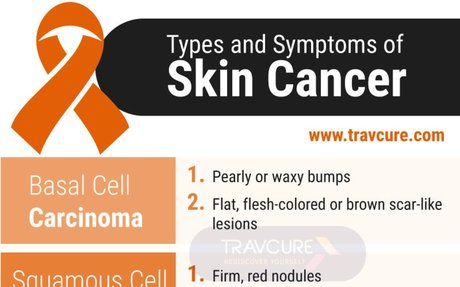 All Types of Skin Cancer - Overview