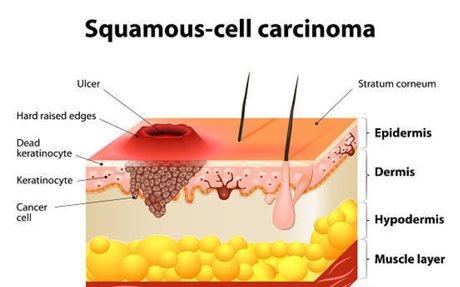 Squamous Cell Carcinoma (SCC) - SkinCancer.org