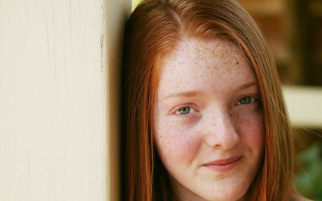 What Causes Freckles?