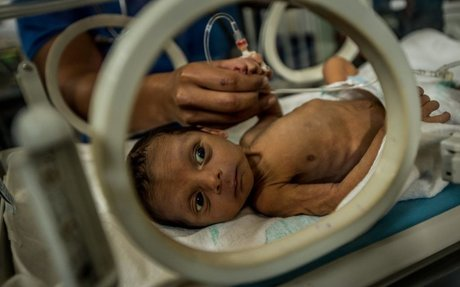 Venezuela: Guilty of Child Starvation | The Times in Plain English