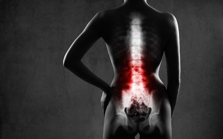 Conditions spinal decompression can treat