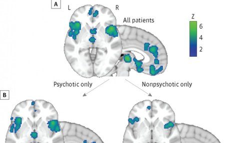 Common Brain Mechanisms in Mental Illness