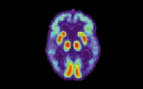 Artificial intelligence can detect Alzheimer's disease in brain scans six years ahead