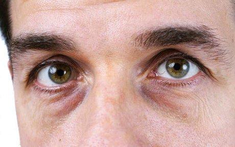 Consejos para reducir la hinchazón de los ojos – Hombres.