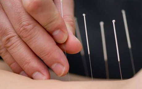 Acupuncture for Low Back Pain – an effective alternative