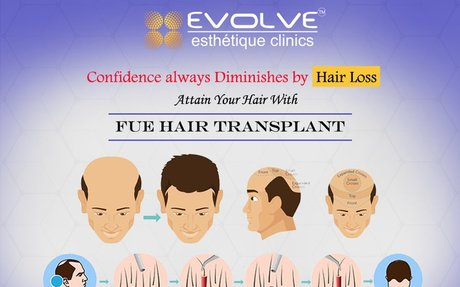 Hair Transplant Clinic in Amritsar - FUE Cost | Evolve Estheique Clinic