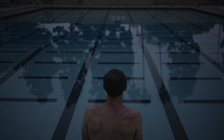 Living with Plaque Psoriasis: Swimming | Psoriasis: The Inside Story
