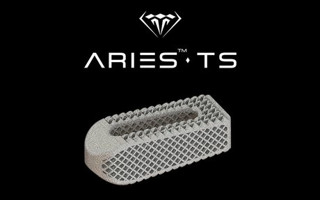 Osseus Fusion Systems Has Officially Announced the Alpha Launch Of Aries™-TS - SPINEMar...