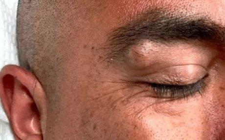 Cara Menghilangkan Benjolan Di Atas Mata dan Alis Secara Alami Tanpa Operasi