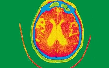 Air pollution particles found inside human brains