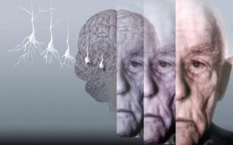Why exercise might be our best weapon against Alzheimer's