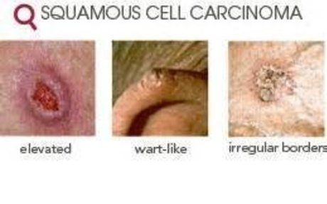Squamous Cell Carcinoma - Prevention and Risk Factors