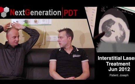 Part 1 - Next Generation PDT Cancer Treatment - Interstitial PDT Therapy (Joseph)