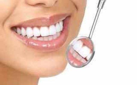 Costo Dentista Roma