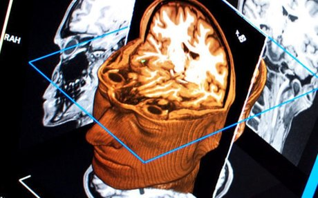 Different mental disorders cause same brain-matter loss, Stanford study finds