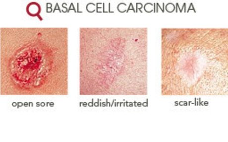 Basal Cell Carcinoma - Diagnosis