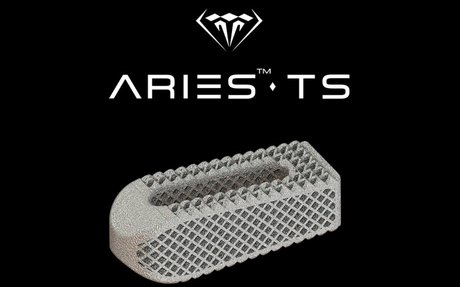 Osseus introduces additively manufactured titanium transforaminal lumbar interbody fusi...