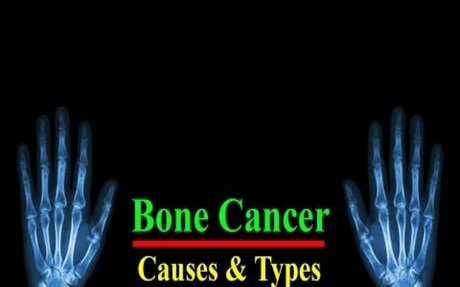 Bone Cancer || Types and Bone Cancer Causes ||