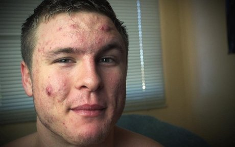 How One Man Defeated His Cystic Acne through Changing What He Ate
