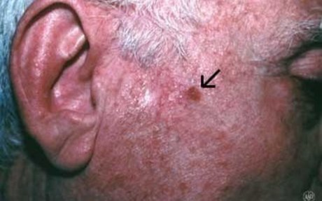 Squamous Cell Carcinoma - Causes