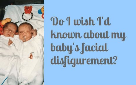 Do I wish I'd known about my baby's facial disfigurement? - Our Altered Life