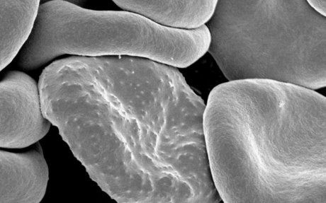 Cells: why shape matters | www.scienceinschool.org