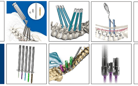10 Minimally Invasive Screw Systems to know...! - SPINEMarketGroup