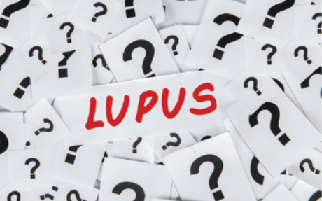 Strong Statistical Association Found Between Trauma and Lupus - The Rheumatologist